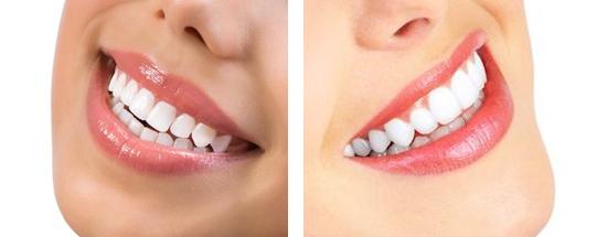 teeth-whitening-v2